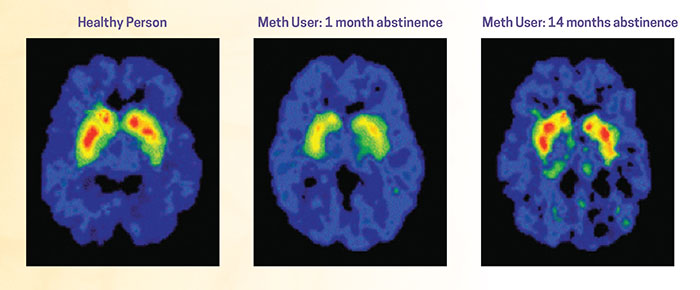 Meth brain scans showing the brain's remarkable ability to recover after abstinence from drugs